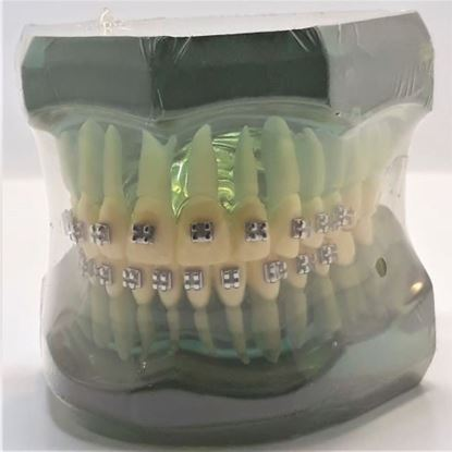 ORTHO MODEL WITH METAL BRACKET